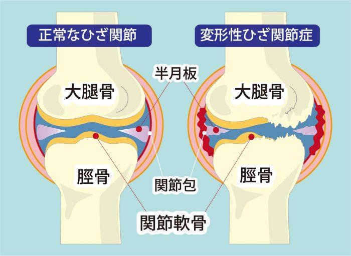 正常な膝関節と変形性膝関節症の違い