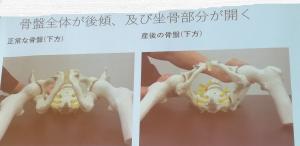 骨盤がゆがむ図解3