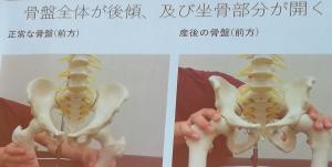 骨盤がゆがむ図解2