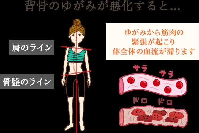 背骨のゆがみが悪化すると、ゆがみから筋肉の緊張が起こり、体全体の血流が滞ります