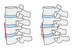 脊椎すべり症の図