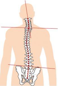 歪んでいる背骨の図